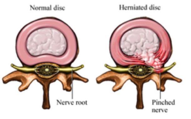 Intervertebral disk pain