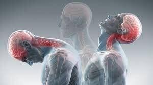 Neck injury and whiplash