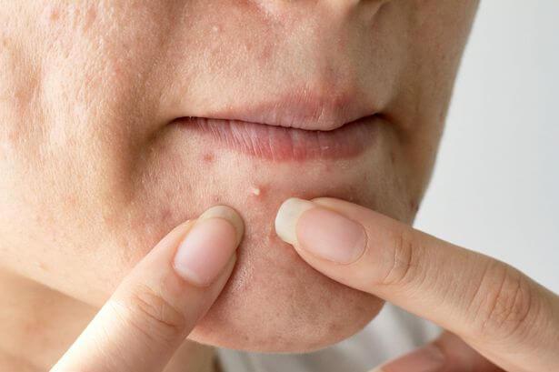 Face face spots on Spot positions,