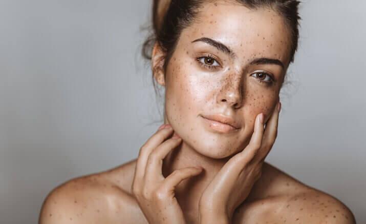 pigmentation, age spots