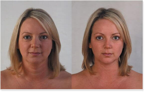 ultimate non surgical face lift before and after