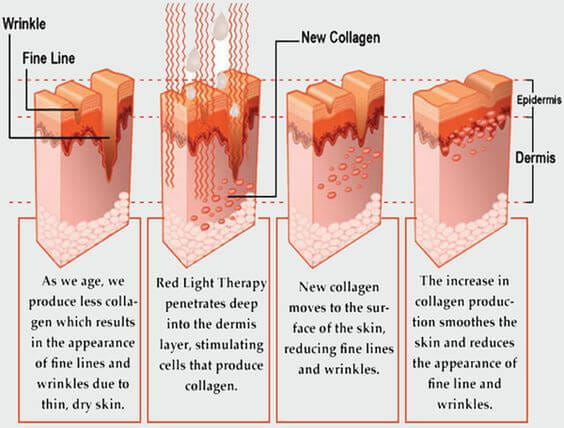 increased-collagen-LED-Light-Therapy