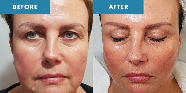Cryolift before and after