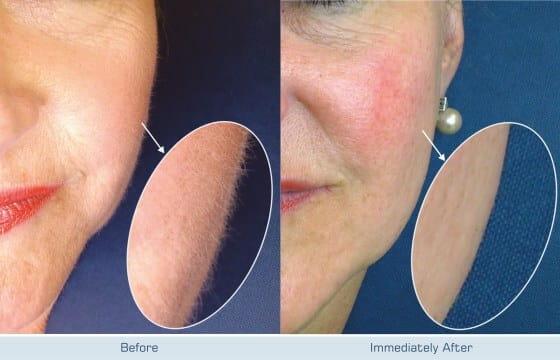 hair v go hair removal treatment for fuzzy soft facial haire