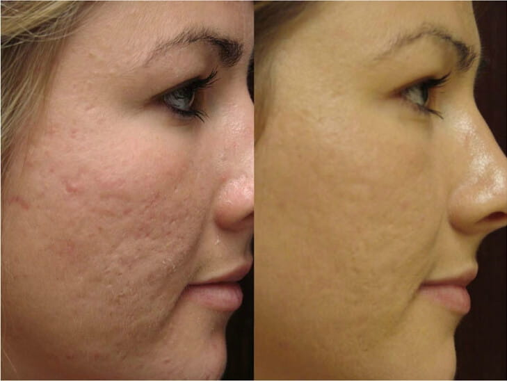 Laser treatment acne scars