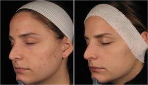 acne treatments hertfordshire