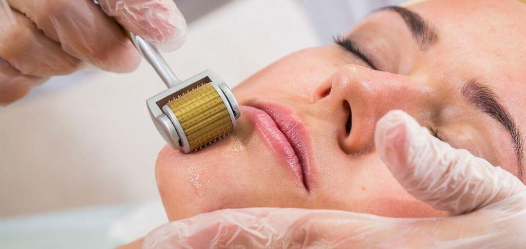 dermaroller-skin-treatments
