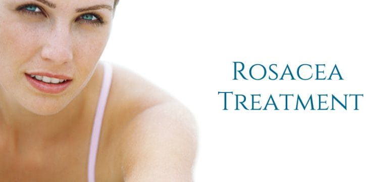 Rosacea cause and treatment