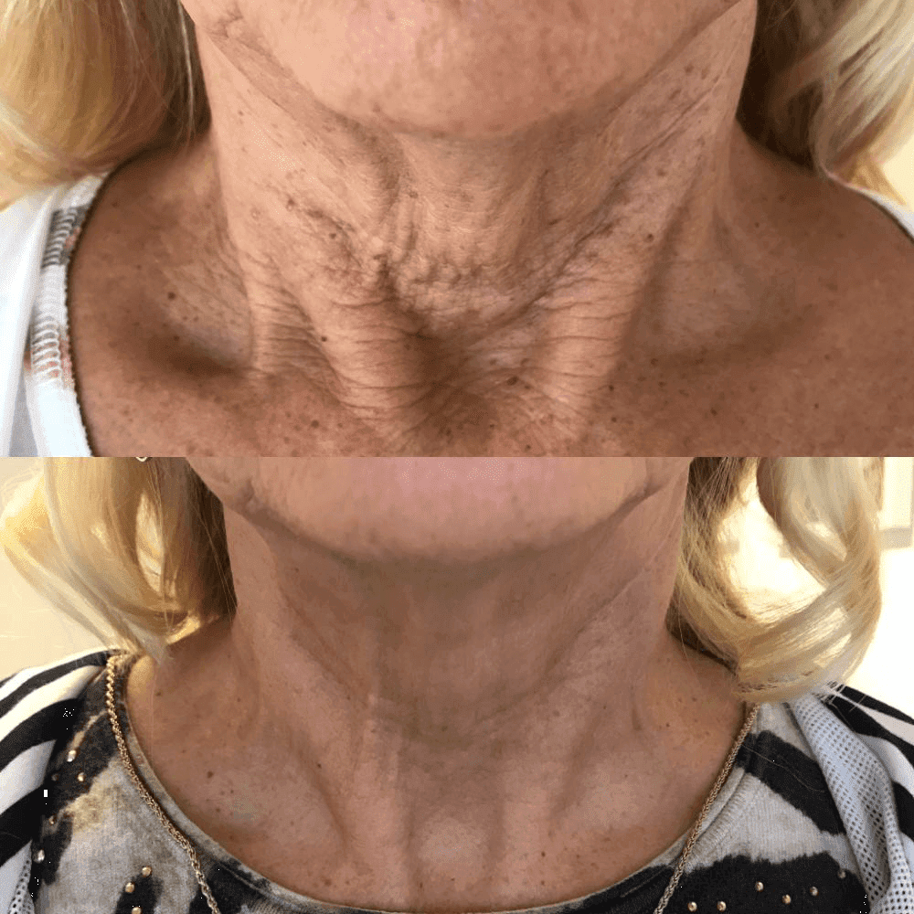 Crepey neck treatment