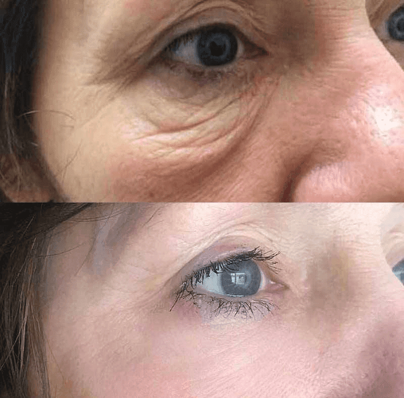 Eyebag removal treatment