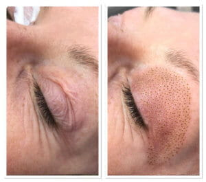 droopy eyelid lift