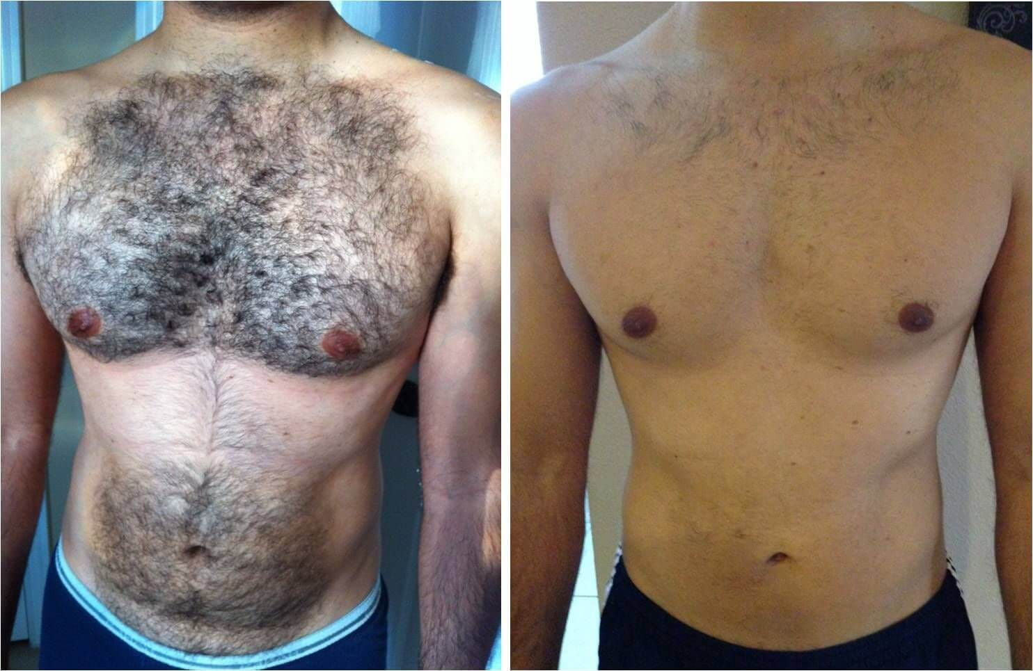 mens hair removal by laser - chest and stomach before and after