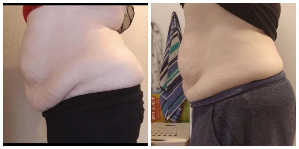 LipoContrast DUO before and after