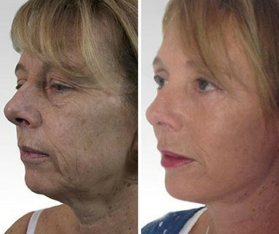 non surgical jowl lift