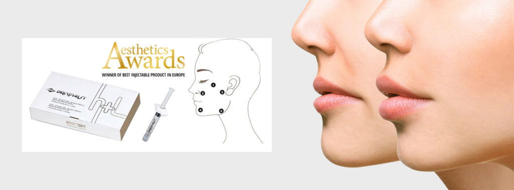 Anti-wrinkle injectibles with Profhilo
