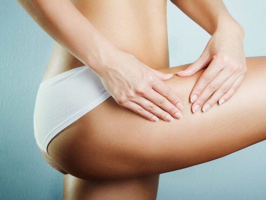 treatment for stretch marks