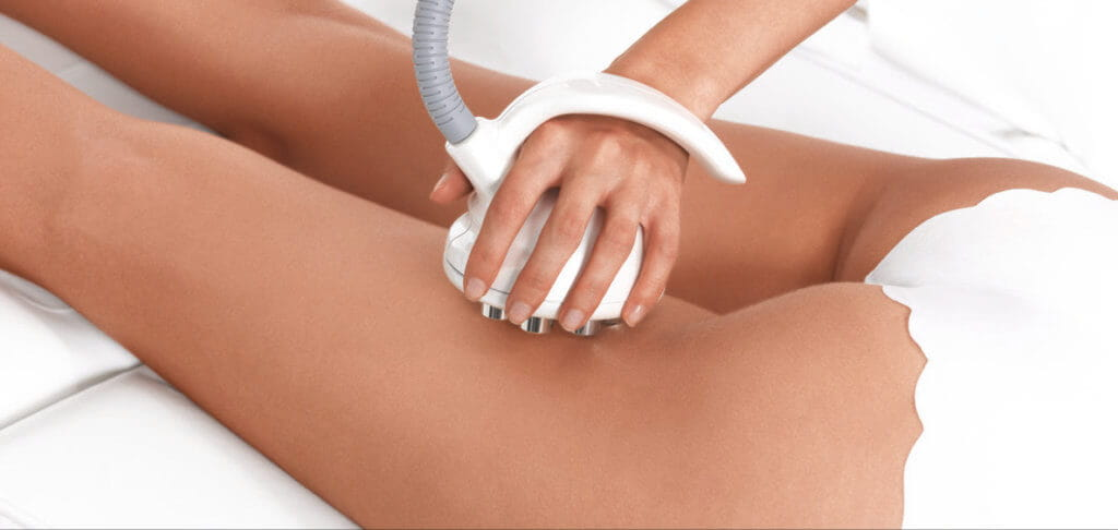 venus freeze skin tightening on legs