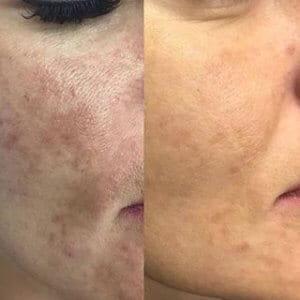 PRX-T33 Skin Treatment