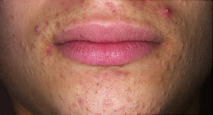 keep-clear-of-acne