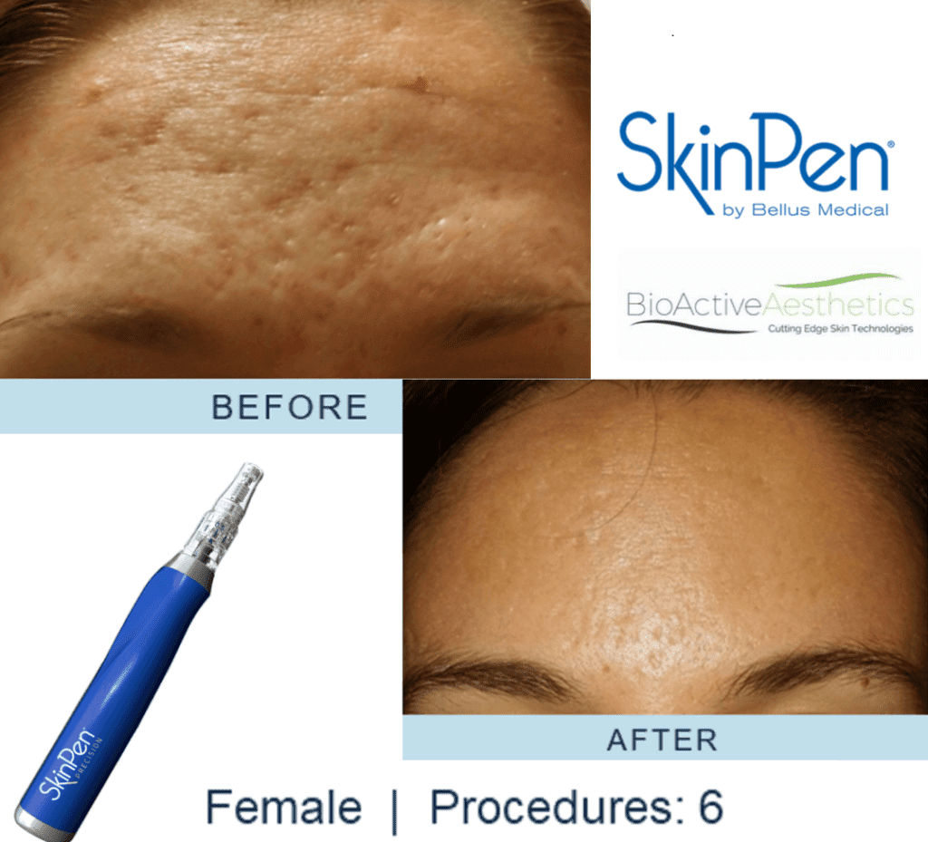 SkinPen Scar and Ageing treatment