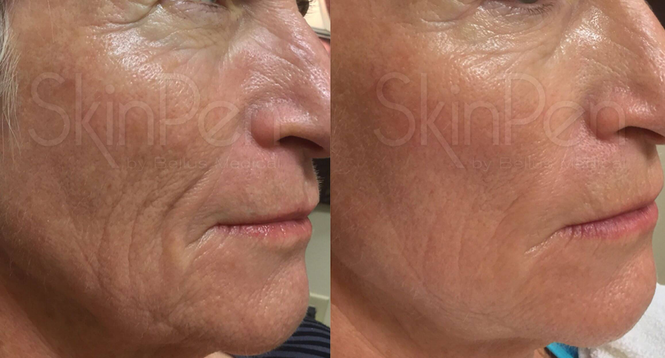 SkinPen skin rejuvenation