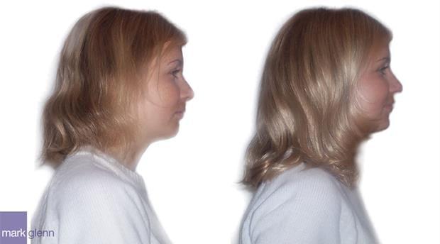 HE001 - Discreet Volume Boost Hair Extensions - Mark Glenn, London, UK
