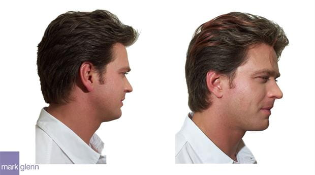 HE038 - Male Men Guys Highlights Only Hair Extensions Before & After