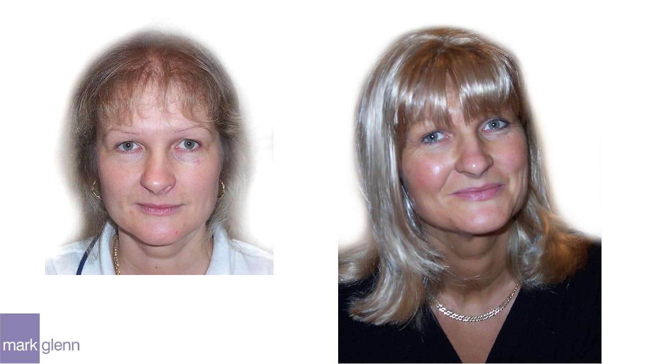 HL001 - Androgenetic Alopecia - Wig Alternative - London
