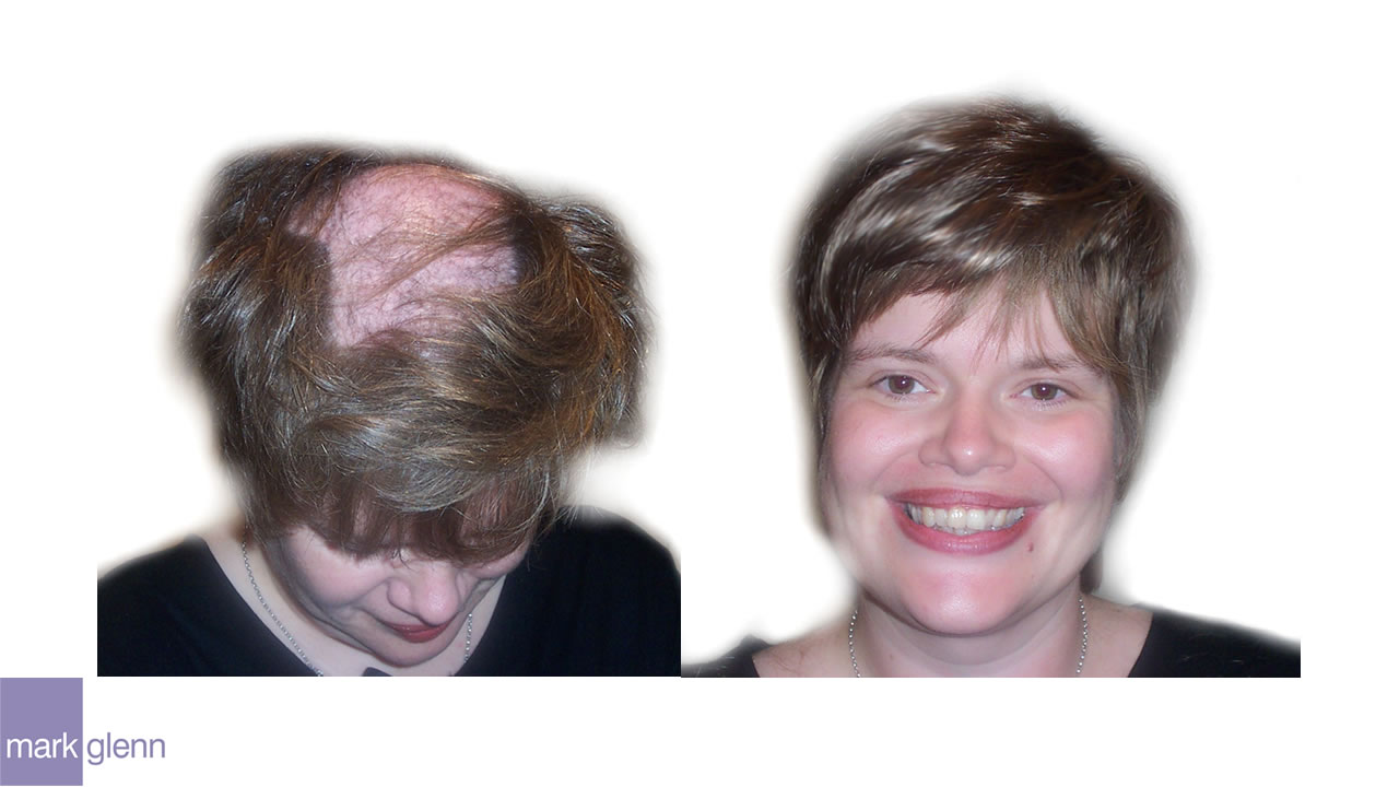 HL003 - Trichotillomania Solution Hair Extensions - London, UK