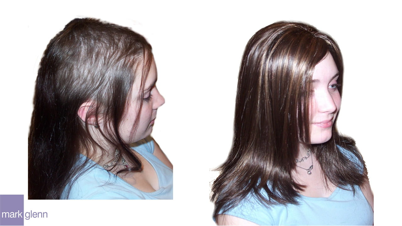 HL005 - Trichotillomania Hair Pulling Kinsey System London UK