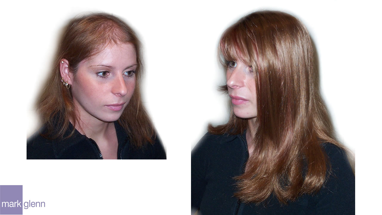 HL008 - Androgenetic Alopecia - Cosmetic Solution - Mark Glenn, London, UK