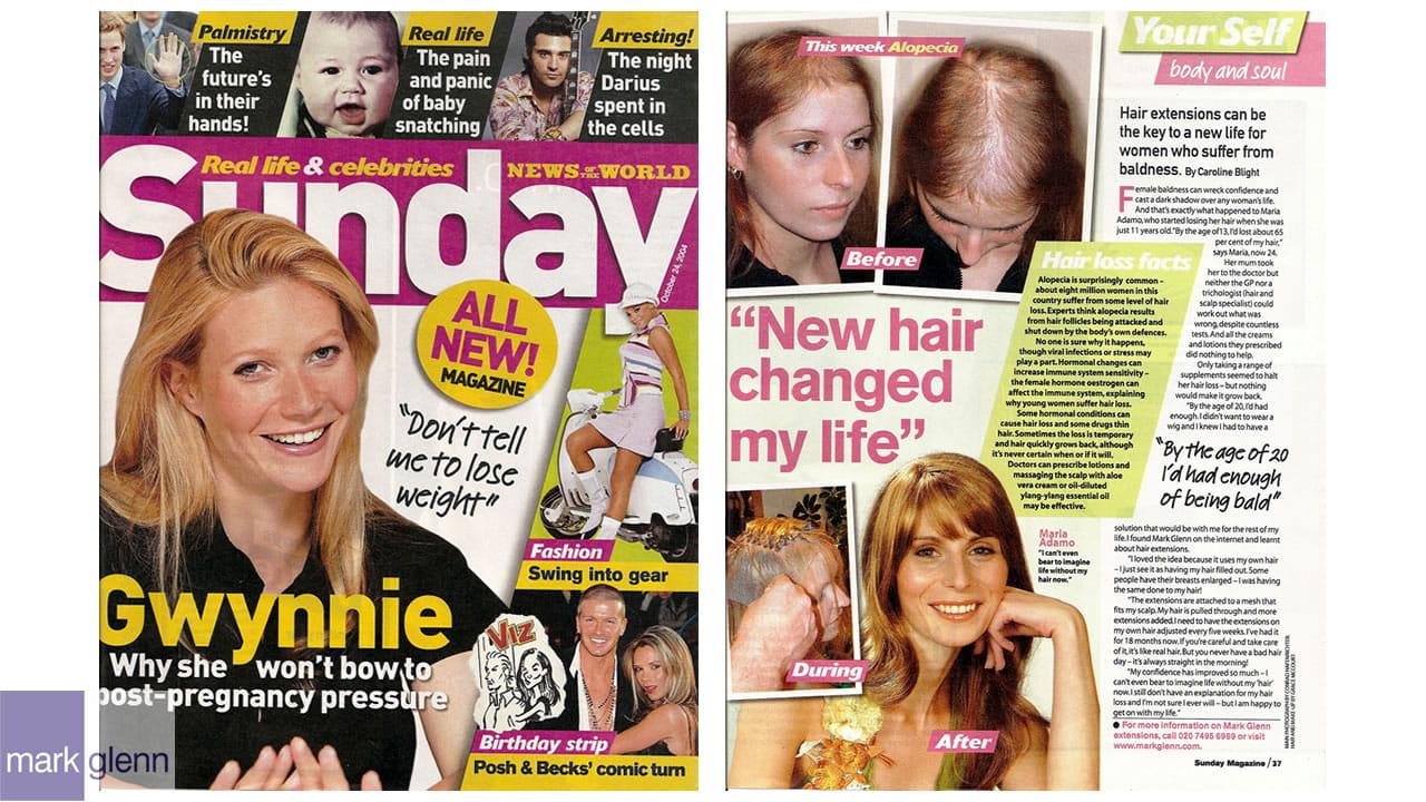 HL008-M - Androgenetic Alopecia or Female Pattern Hair Loss - Wig Alternative at Mark Glenn, London