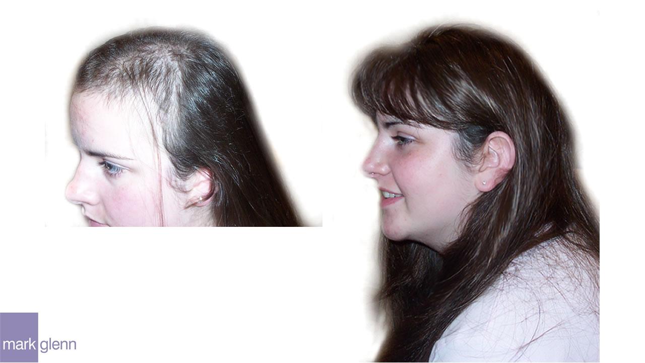 HL011 - Trichotillomania Hair Pulling Turnaround - Cosmetic Solution - London, UK