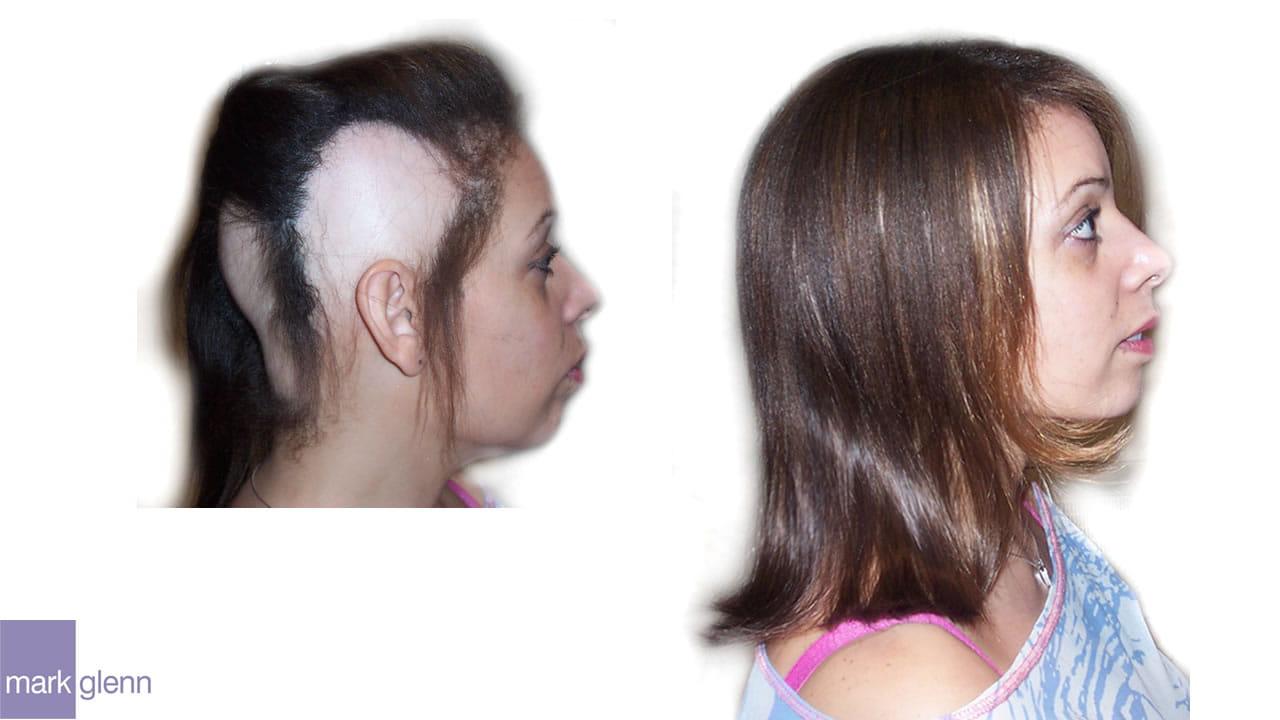 HL012 - Alopecia Areata - Cosmetic Solution from Mark Glenn, London, UK