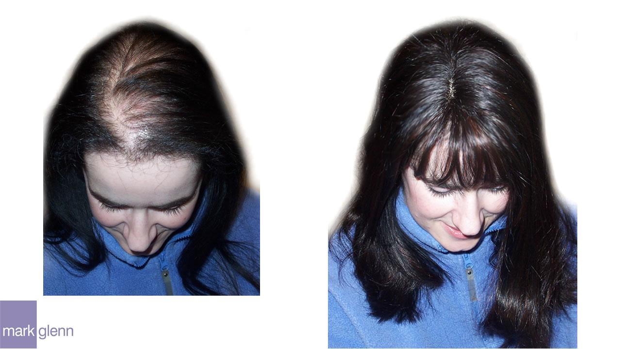 HL013 - Androgenetic Alopecia - Kinsey System Solution - London, UK