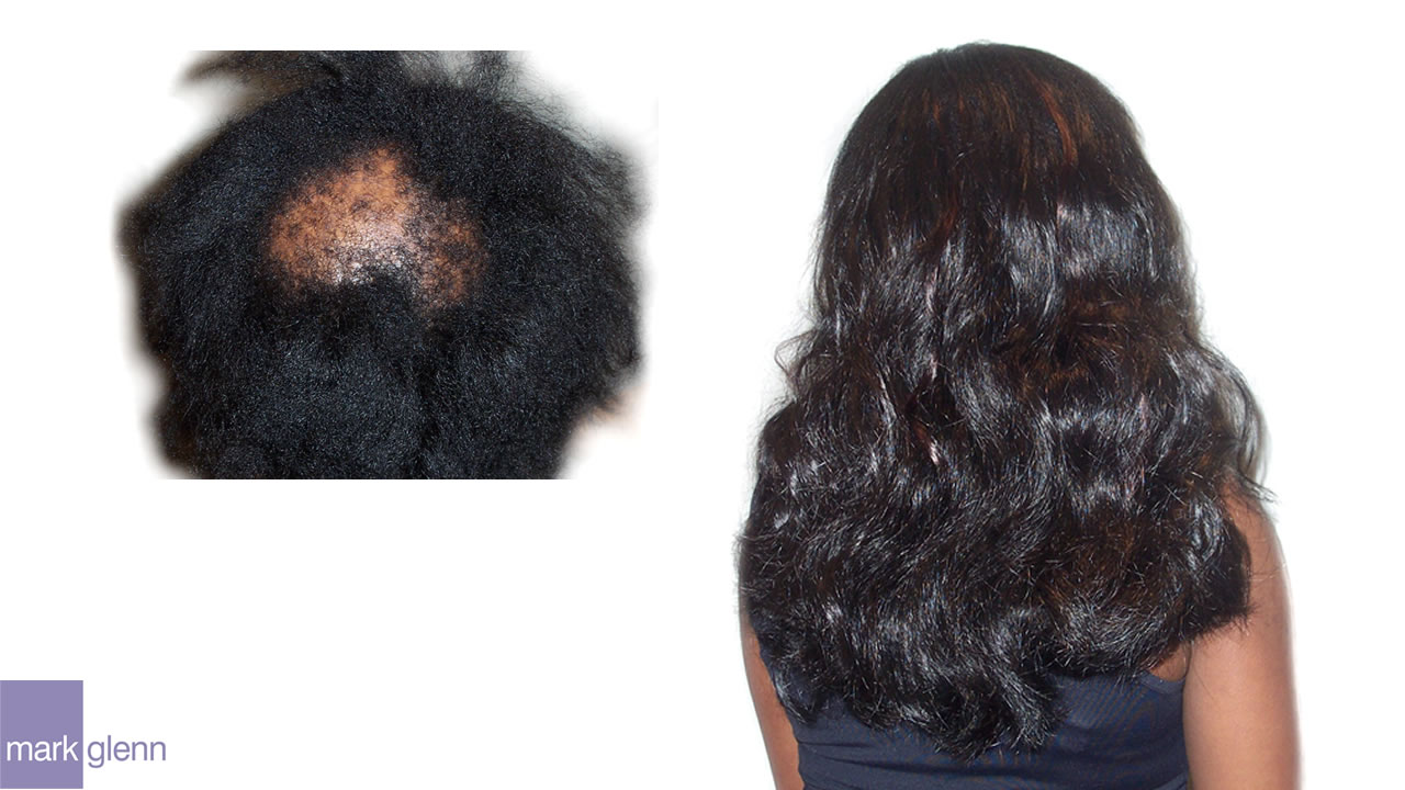 HL015 - Traction Alopecia from Clip-In Hairpiece