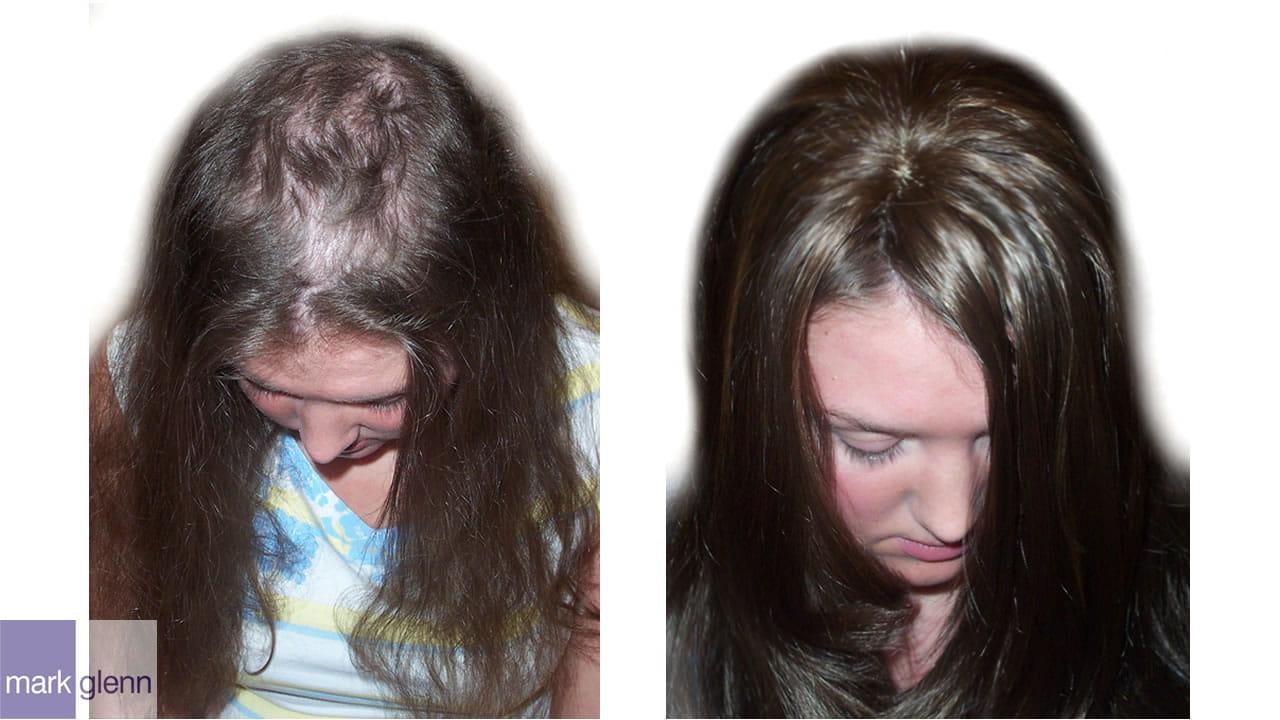 HL016 - Trichotillomania - Cosmetic Hair Solutions London