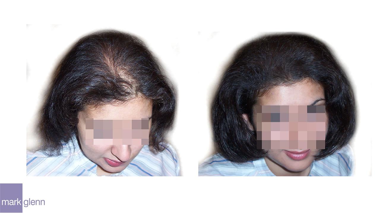 HL017 - Androgenetic / Stress - Alopecia - Kinsey System, London