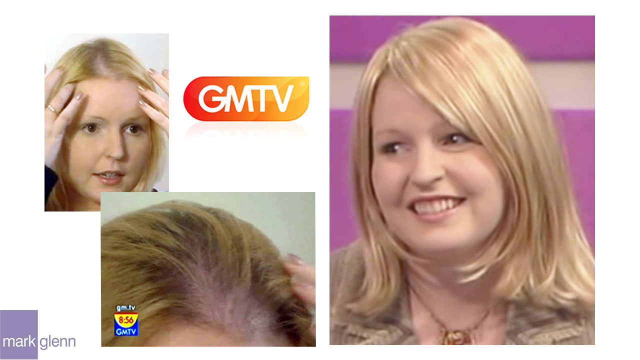 HL100-M - TV Feature - Endometriosis Hair Loss Miracle Makeover - Before & After