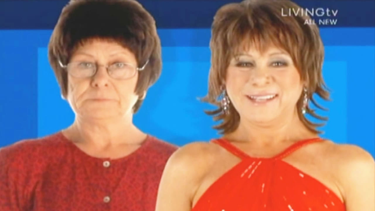 HL101-M - Extreme Makeover UK - Maureen - Hair Loss - Before & After