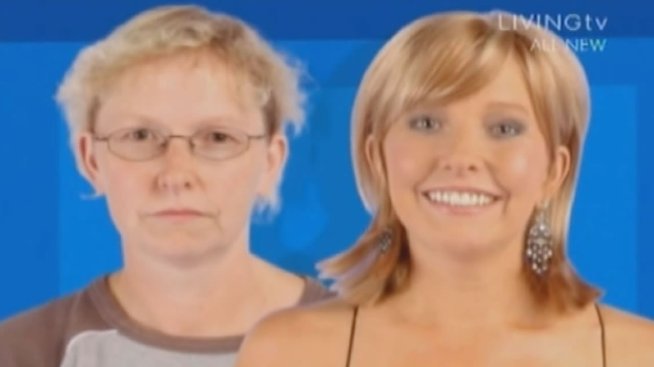 HL102-M - Extreme Makeover UK TV - Kim - Hair Loss Before and After