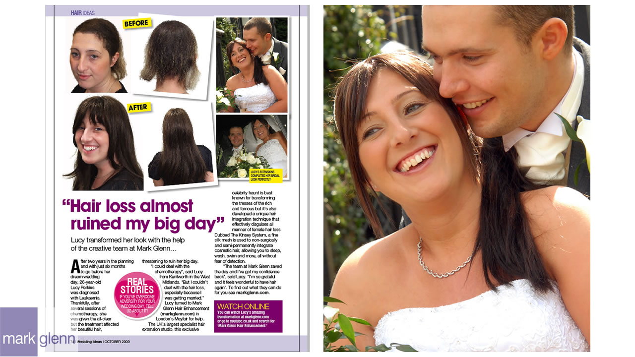 HL103-M - Leukaemia Hair Loss Restored for Wedding - Kinsey System, London