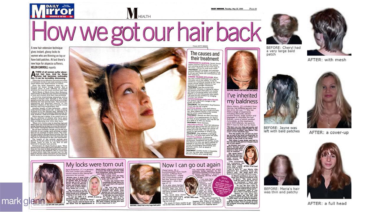 HL109-M - Three Types of Female Hair Loss Cosmetically Fixed - Mark Glenn, London