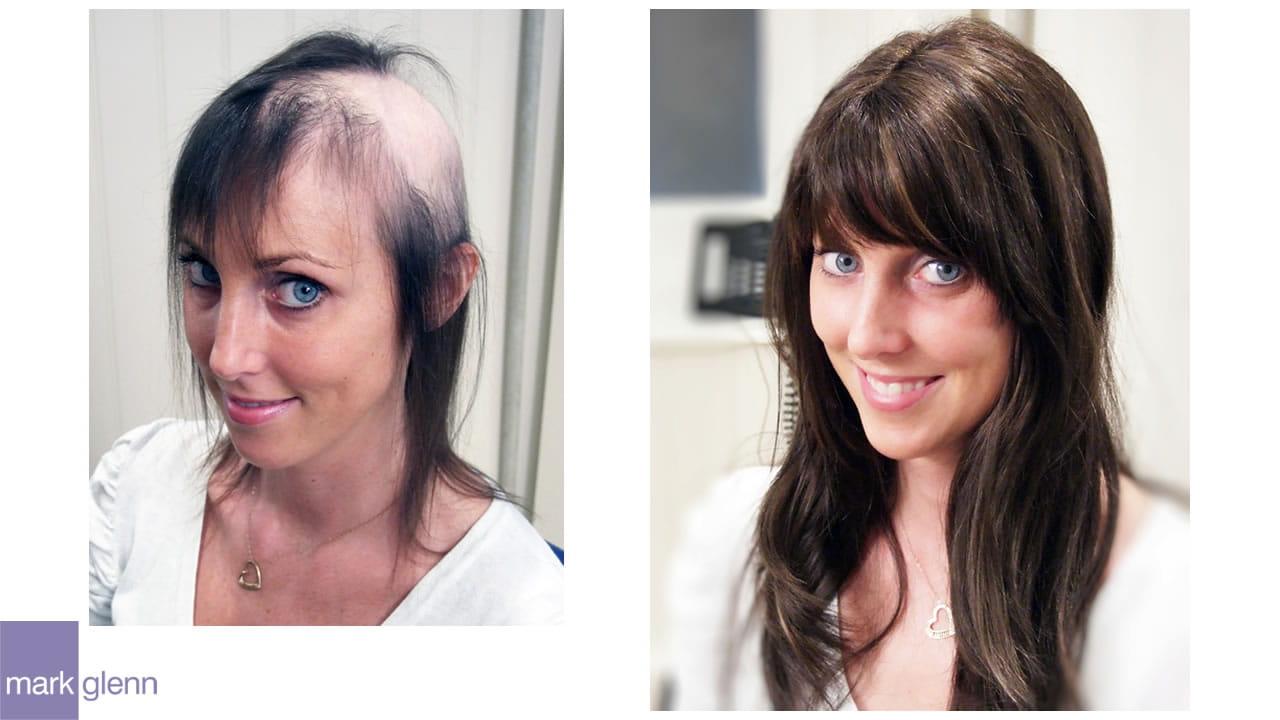 Female Hair Loss in London - Kinsey System
