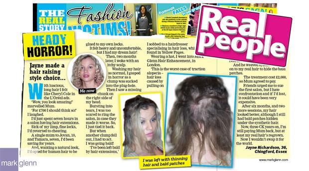 HL112 - Real Hair Extensions Bald Patches Recovery at Mark Glenn, London
