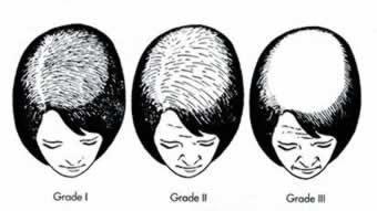 'Female Androgenetic Alopecia - Grading Scale Diagram