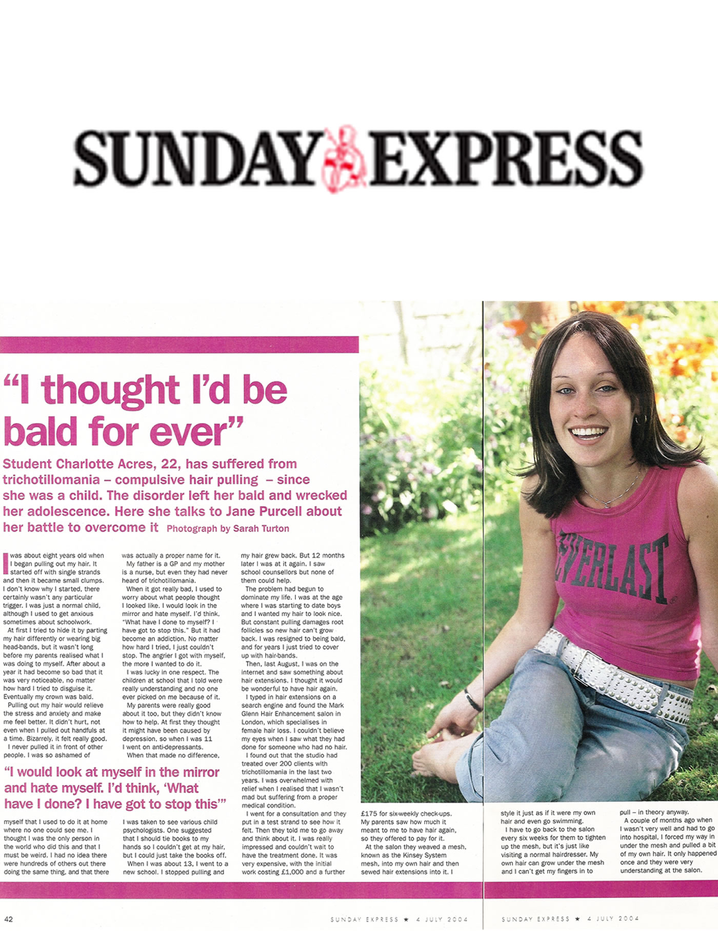 'I thought I'd be bald forever' - Trichotillomania solution from Mark Glenn in The Sunday Express