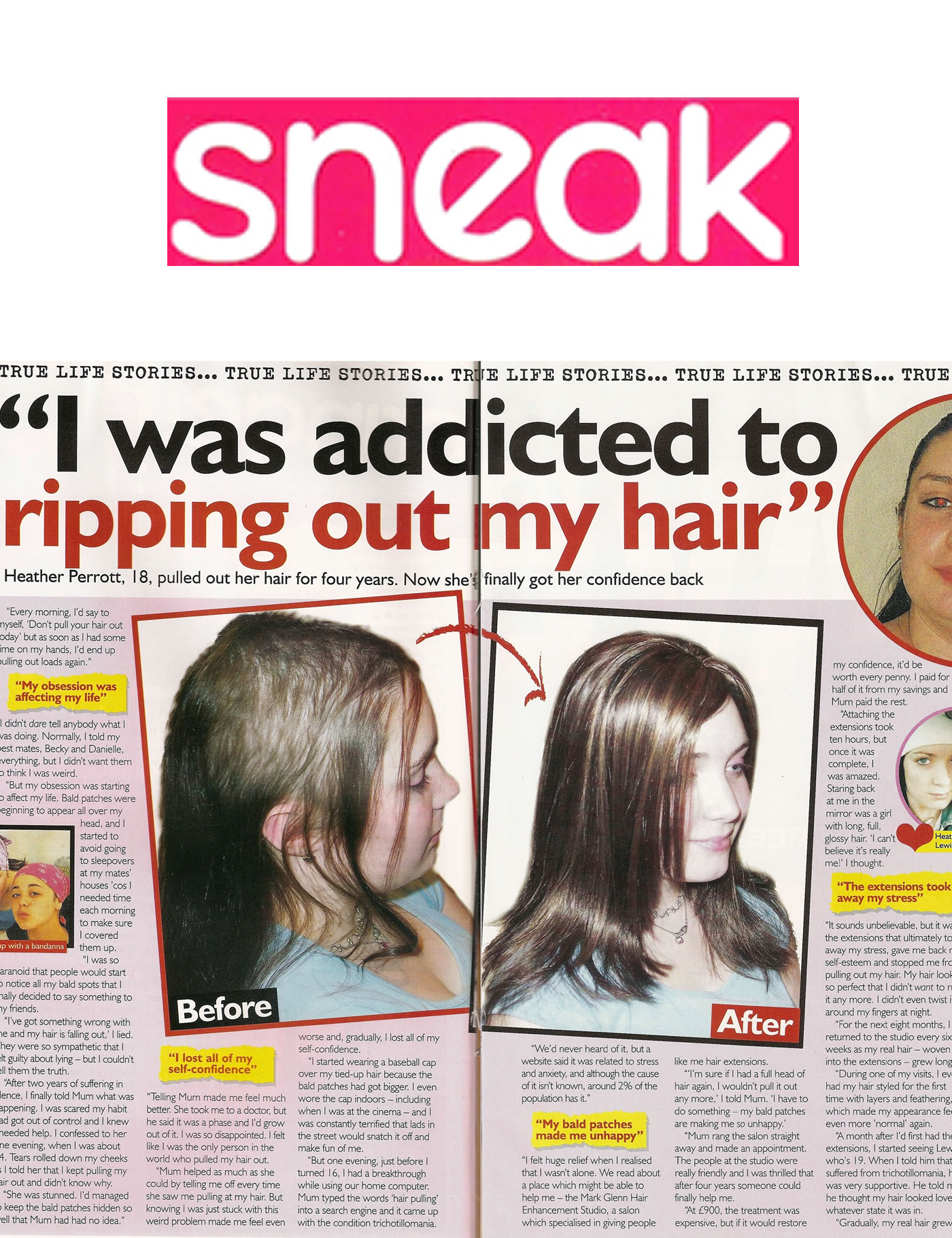 'I was addicted to ripping out my hair' - Mark Glenn's trichotillomania solution: Sneak Magazine