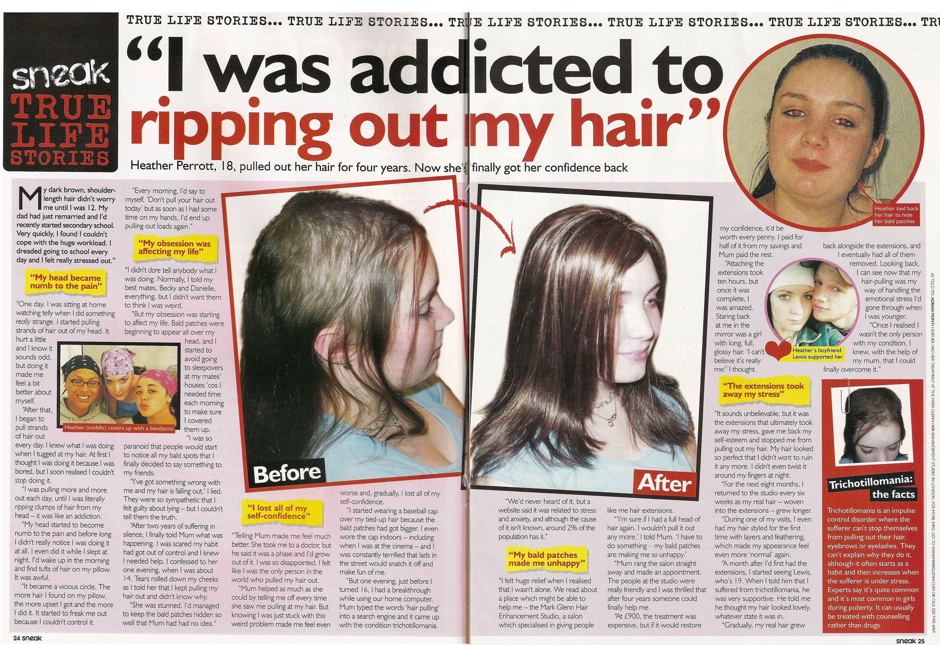 'I was addicted to ripping out my hair' - Sneak Magazine