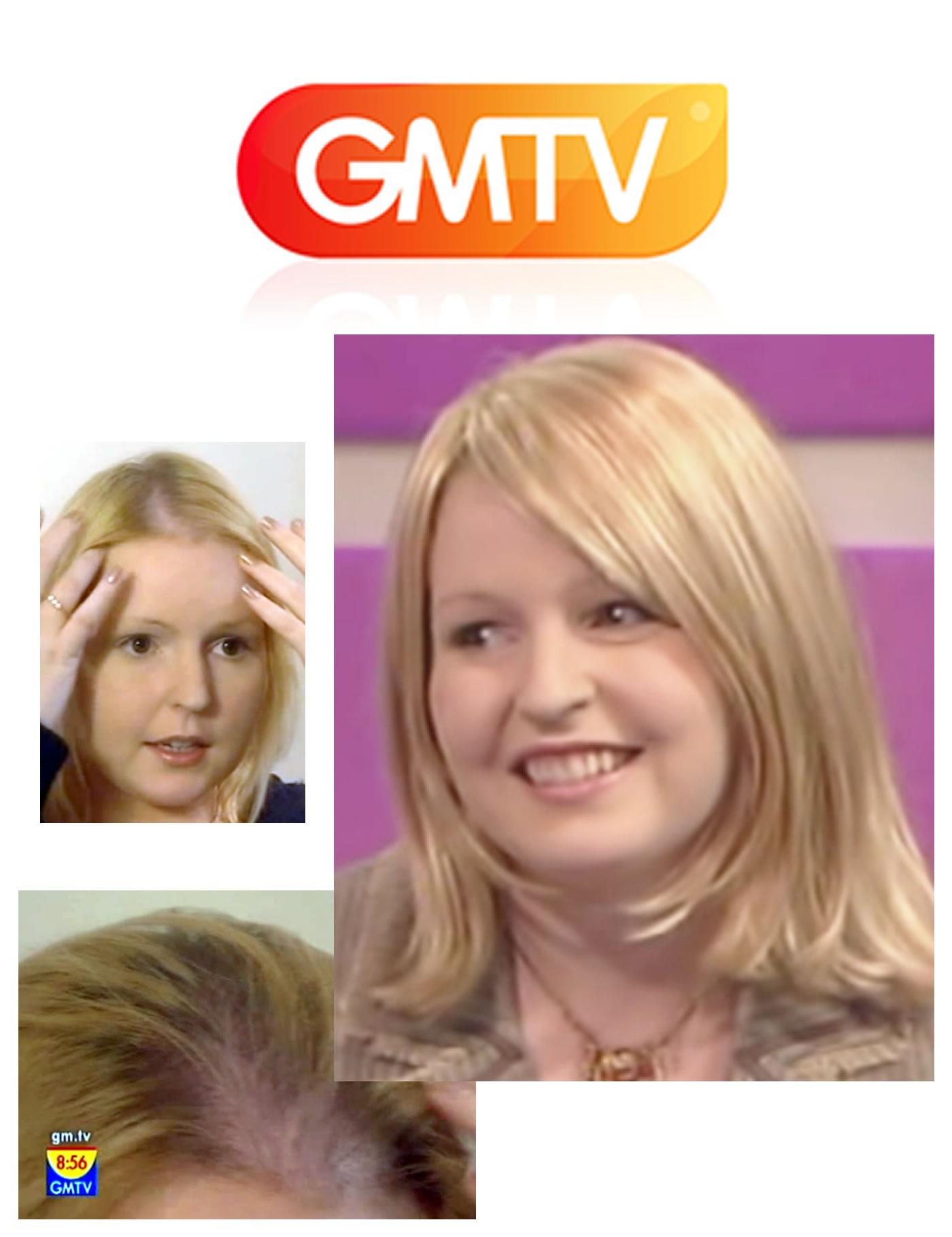 GMTV Live Miracle Makeover for female hair loss - Mark Glenn